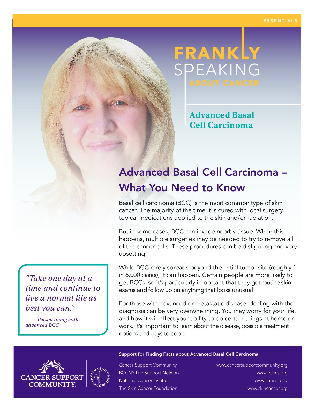 Frankly Speaking About Cancer: Metastatic Basal Cell Carcinoma