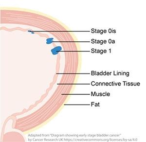 non-muscle_invasive_bladder_cancer_its_treatment.web_.jpg