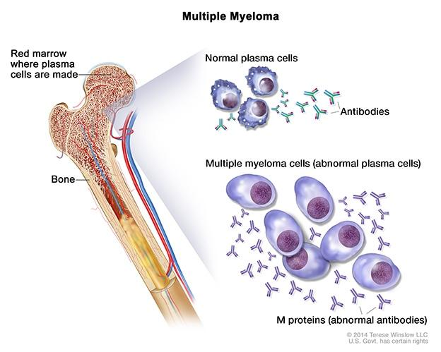 multiple myeloma infographic