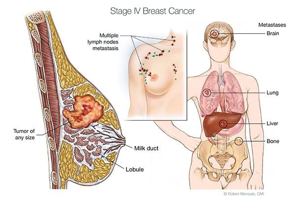 stage IV breast cancer